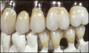 EK-Dentallabor Implantate